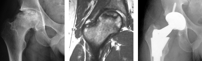 Hip Replacement Avascular Necrosis