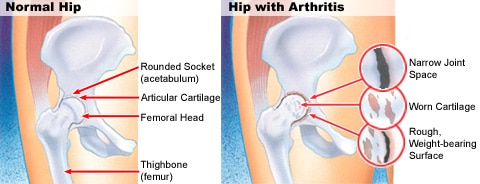 Normal Hip and Hip Osteoarthritis