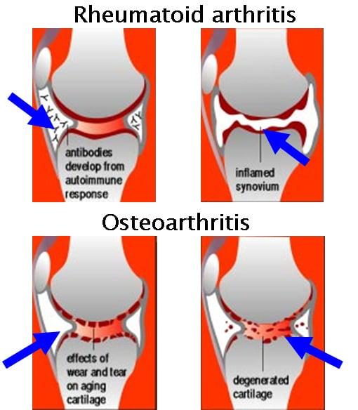 Arthritis Joint Inflammatory Arthritis