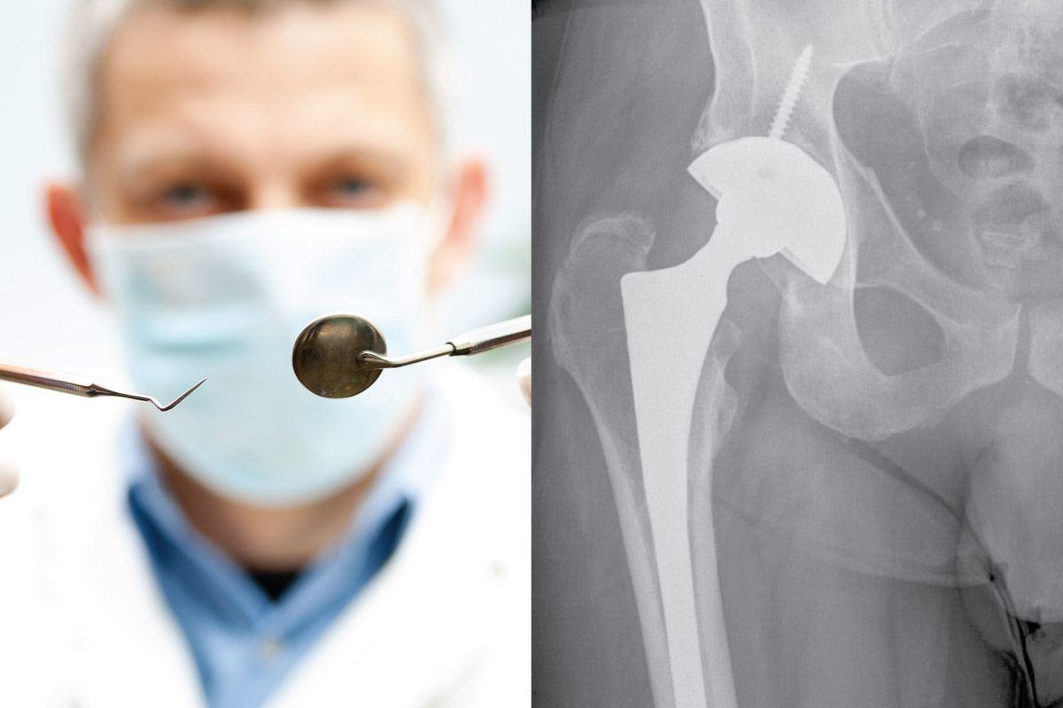 Dental Treatment after Hip or Knee Replacement - Robert Howells