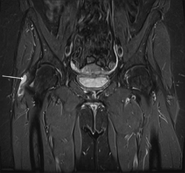 MRI scan Trochanteric Bursitis