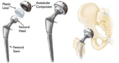 Total Hip replacement Components
