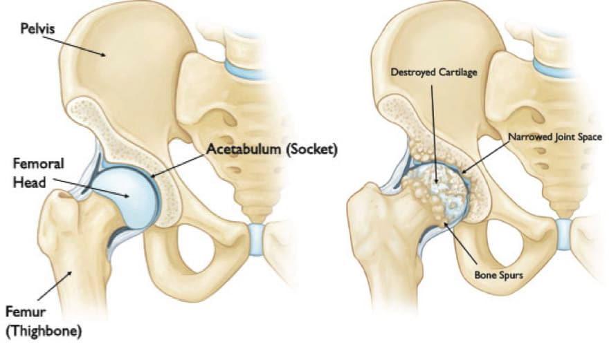 hip-arthritis Total Hip Replacement