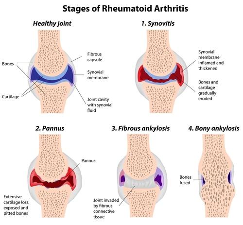Inflammatory Arthritis Rheumatoid Arthritis Stages