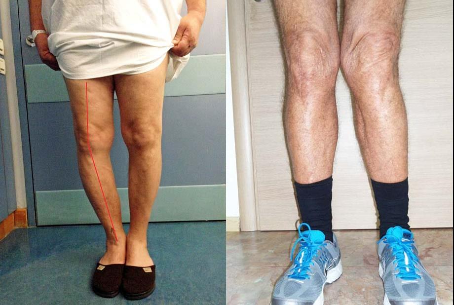 knee osteoarthritis varus/valgus