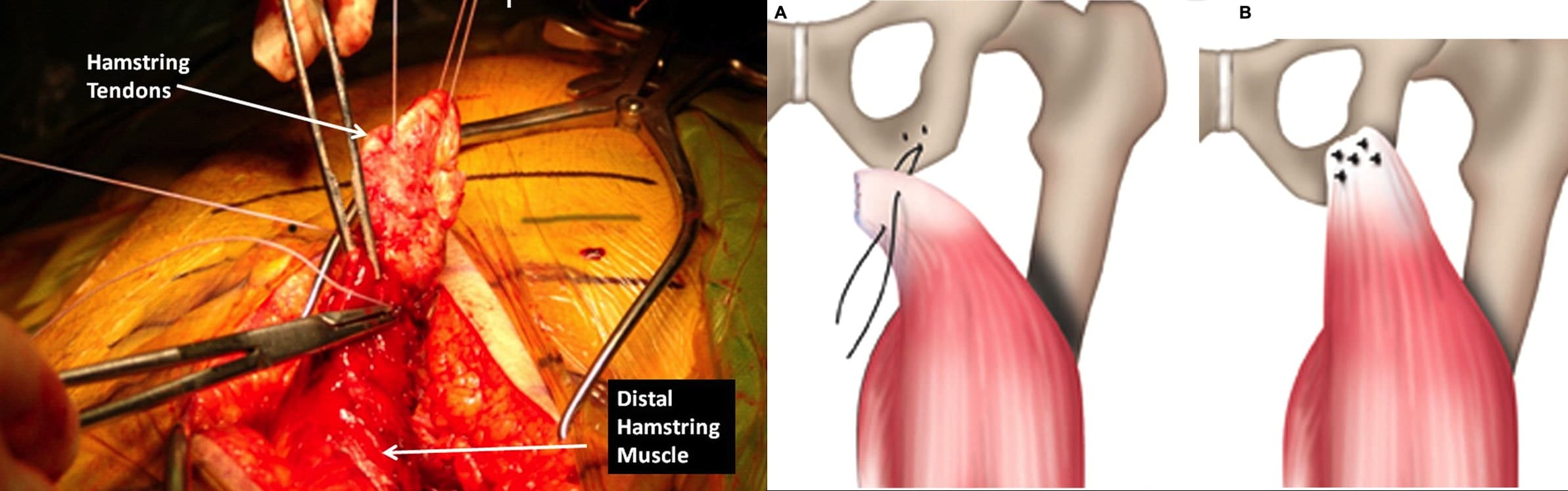 proximal hamstring repair