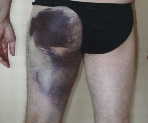 bruising proximal hamstring injury