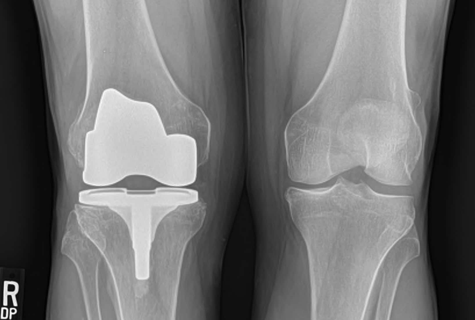 knee osteoarthritis knee replacement xray